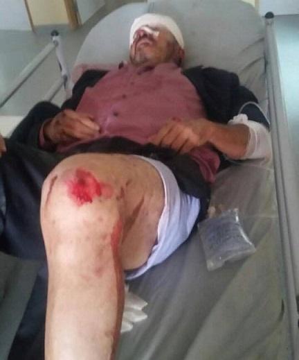 اللاعب السابق للدفاع الجديدي ''اسبانيا'' يعاني في صمت داخل المستشفى العسكري