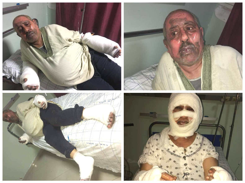 الإهمال يقتل الفنان مصطفى الجلبي.. بعد أن التهمته وزوجته النيران بالجديدة